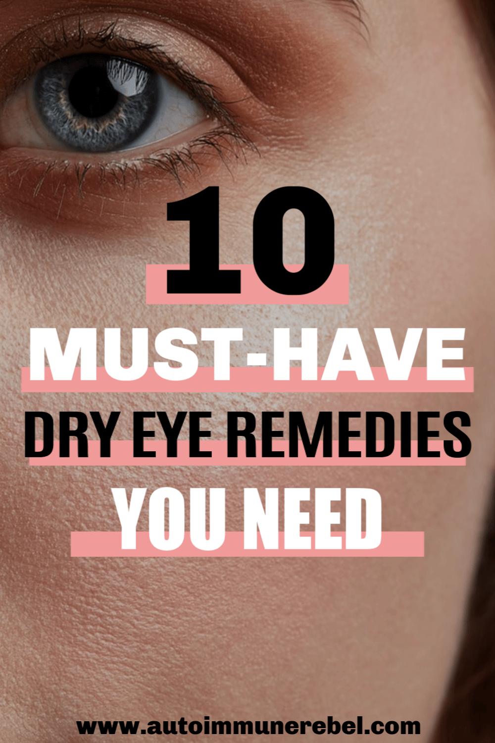 dry eyes home remedy